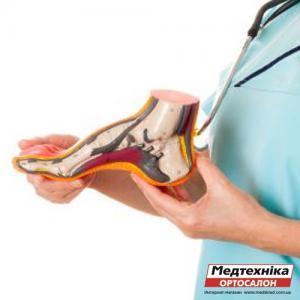 Как выбрать ортопедические стельки: при поперечно-продольном плоскостопии