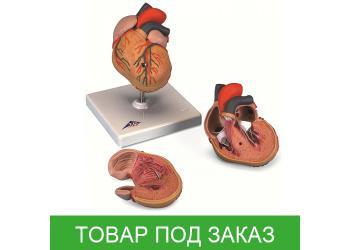 Сердце с гипертрофией левого желудочка