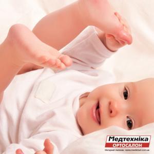 Как исправить плоскостопие у ребенка | Лечение плоскостопия у детей