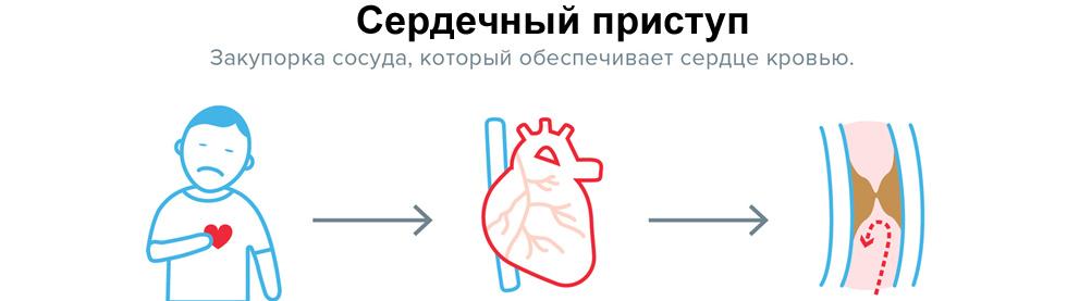 Что такое сердечный приступ