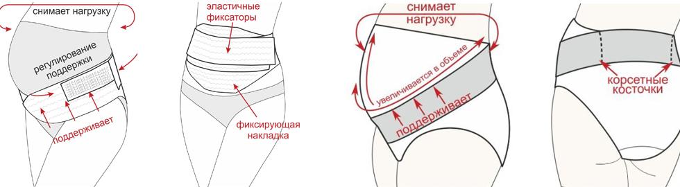 Функции дородовых бандажей