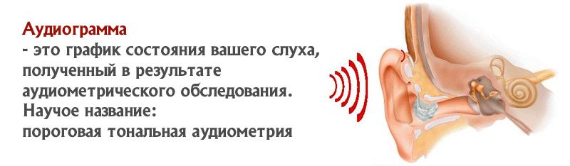 Аудиограмма
