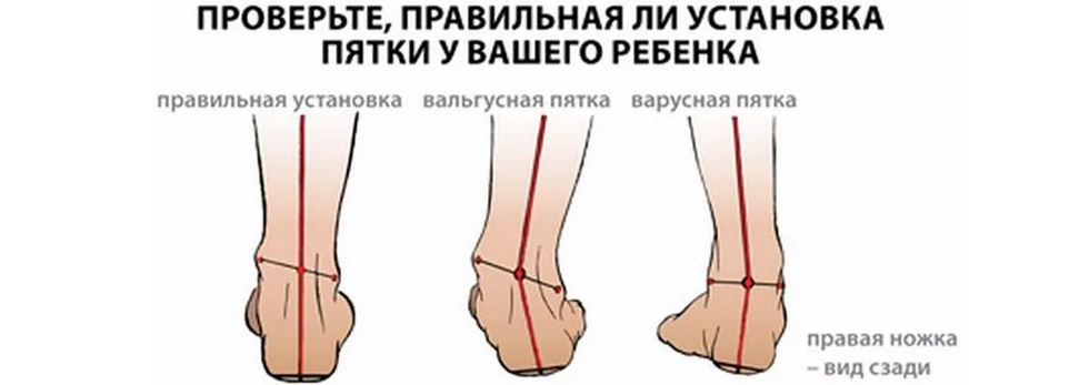 Диагностика вальгусной деформации стопы
