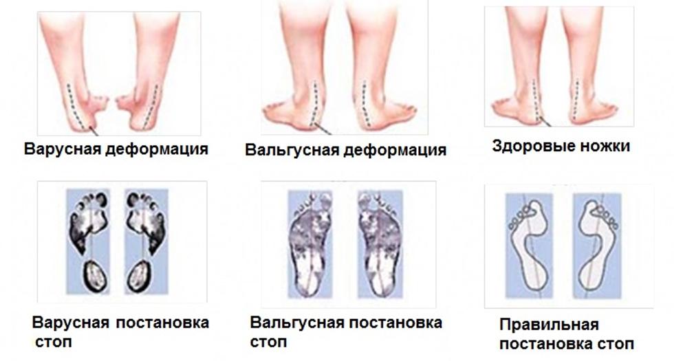 Как определить вальгусную деформацию стопы у ребенка
