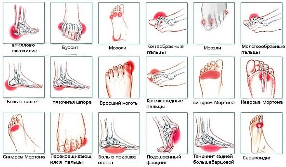 Причины боли в стопах