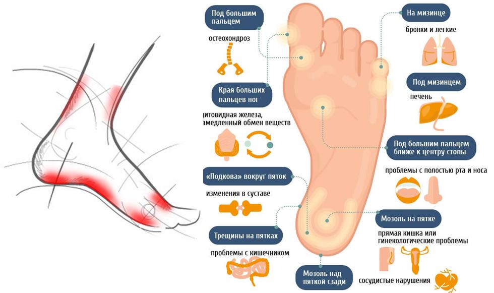 порекомендовать боли в области косточки стопы специалист