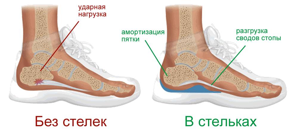 Действие ортопедических стелек на стопу