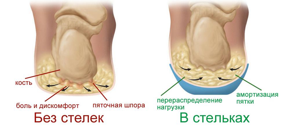 Ортопедические стельки от болей в стопах