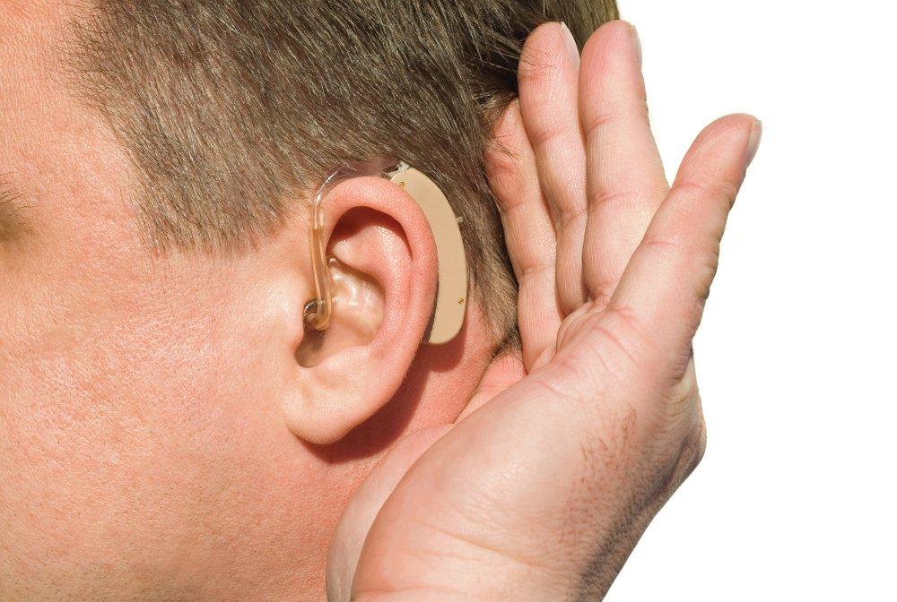 Аналоговый слуховой аппарат отзывы