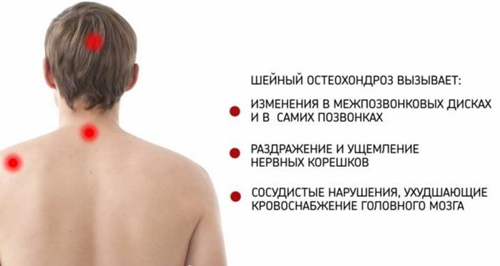 Как лечить деформирующий артроз голеностопного сустава