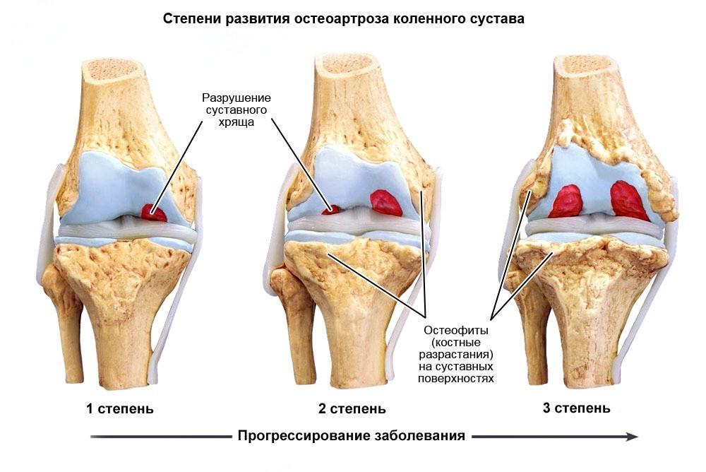Болевой синдром при остеопорозе лечение