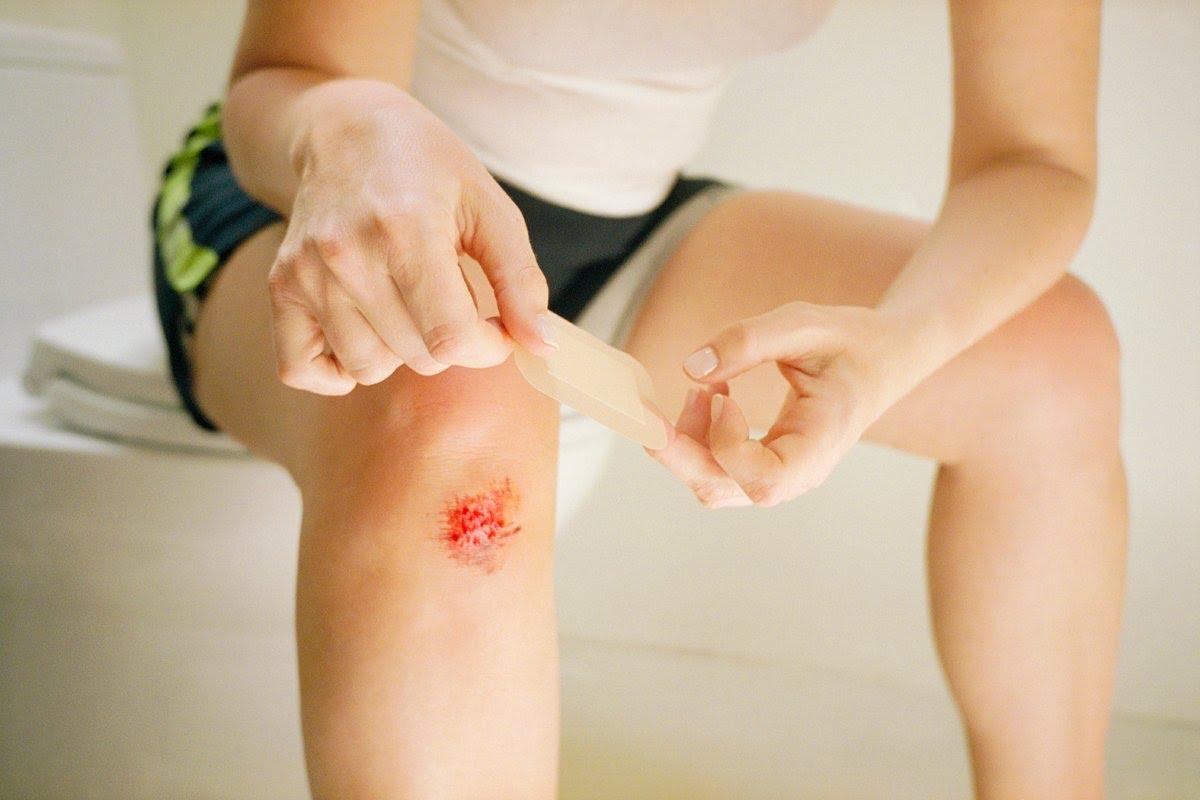 Синовит коленного сустава лечение дома