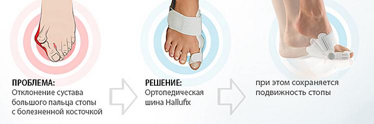 Шина-бандаж ортопедическая, Hallufix