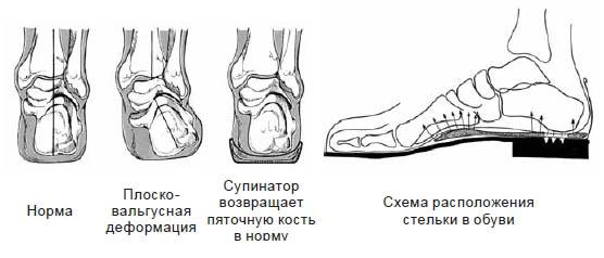 Ортопедическая стелька-супинатор